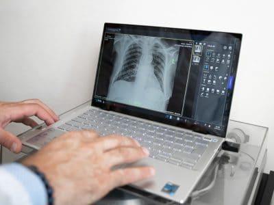 La radiografia al torace: in cosa consiste e quando farla