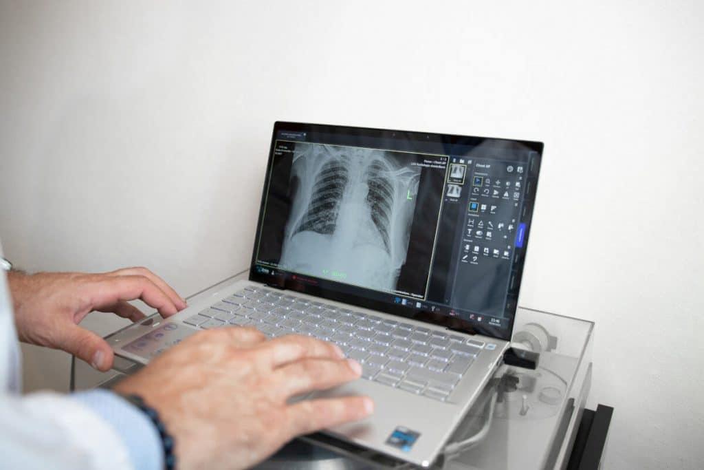 Referto digitale Radiografia torace a domicilio