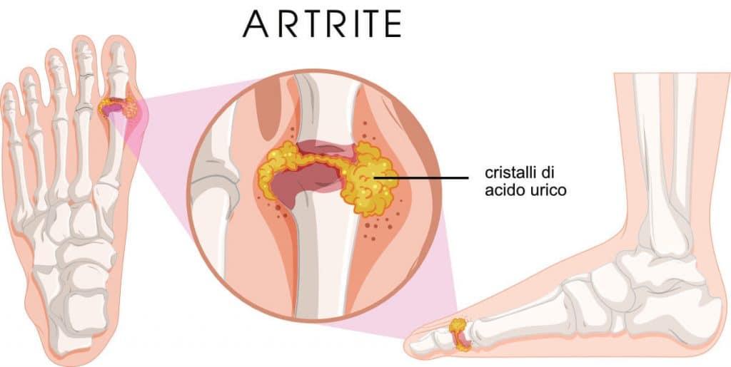 Artrite del piede