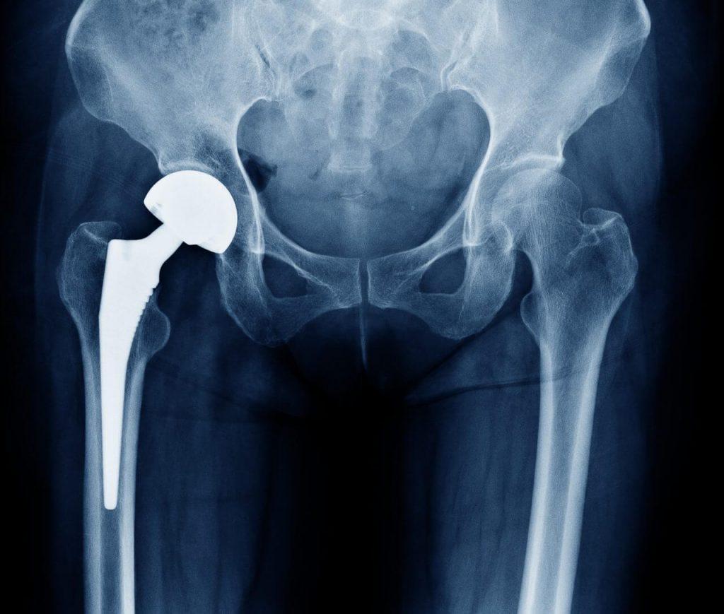 Radiografia controllo protesi anca