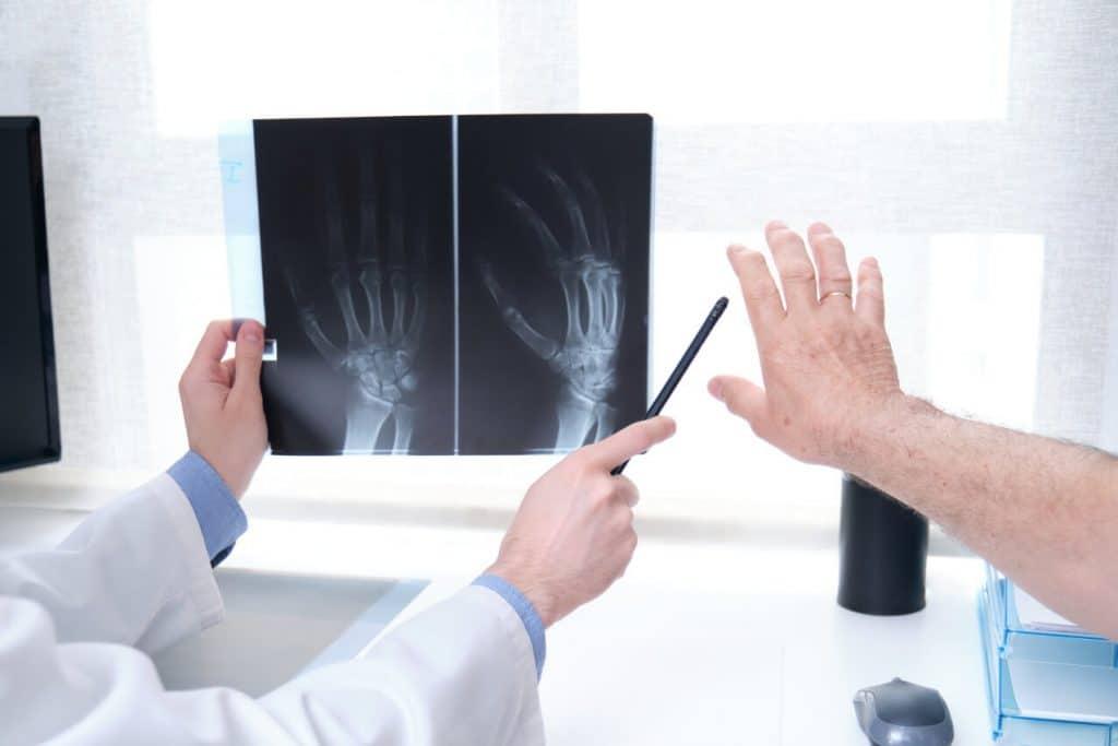Artrite Reumatoide: RX Mano